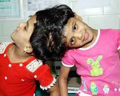 Surgical separation of conjoined twins-'high risk'