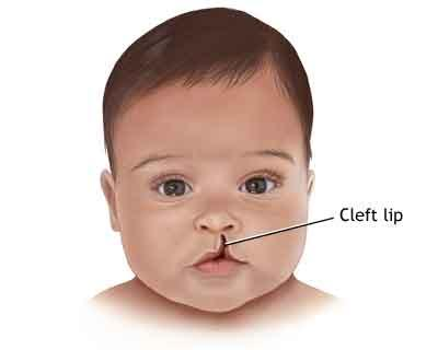 Over 72,000 cases of unrepaired cleft lip, palate exist in India