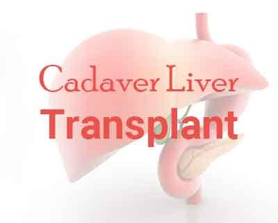 West Bengal: First cadaver liver transplant in Kolkata performed