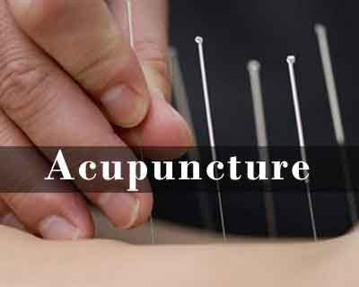 Puducherry: Govt may introduce Acupuncture in government hospitals