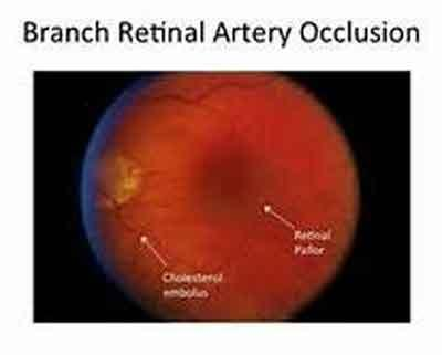 Delhi : 20 yr old Boy suffering from Branch Retinal Artery Occlusion cured