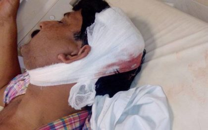 New Delhi: Doctor beaten up mercilessly in a road rage episode