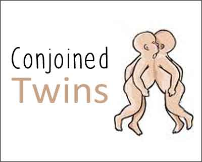 """Jaga –Balia"""", the conjoined twins clinically fit, will stay for few months in AIIMS, Delhi"""