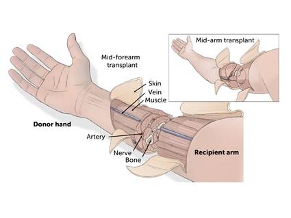 Global Hospitals receives license for hand transplantation