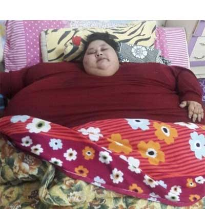 Rare genetic defect cause obesity of Eman