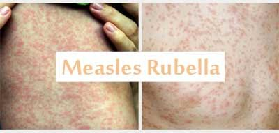 Efforts to eliminate measles rubella by 2020: Health Ministry