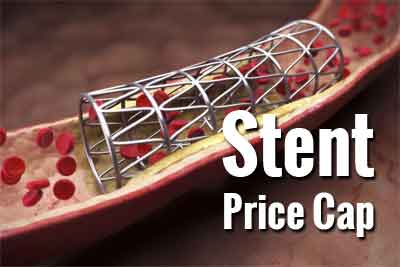 Stent Prices Capped at Rs 29,600, profits slashed