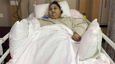 World heaviest woman operated at Saifee Hospital, loses 100 kgs