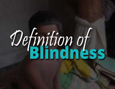 India to tweak definition of blindness to meet WHO stipulation