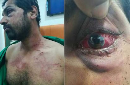 Patient's family beat doctor up leaving him partially blind