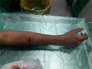 Mumbai: Drunk Patient attacks doctor with knife, slashes arm