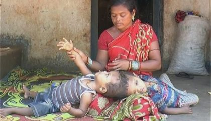 Odisha govt to provide medical assistance to conjoined twins