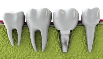 Conference to promote digital Dental Implant Surgery