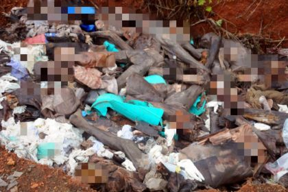 Shocking: Medical College Dumps Dead Bodies in Open Pits