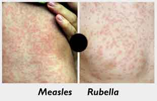 Measles cases rise up by 300 percent consecutively for past two years Globally: WHO