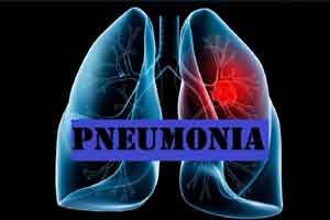 MP, UNICEF to vaccinate infants against pneumonia, meningitis