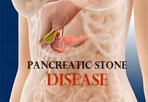 Pancreatic stone disease witnesses increase in Kashmir