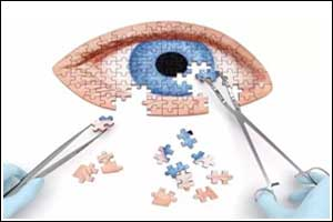 5 get infection after cataract surgery AIIMS Raipur