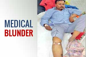 Medical Blunder: Delhi Doctor Operates on Leg of a Head Injury Patient