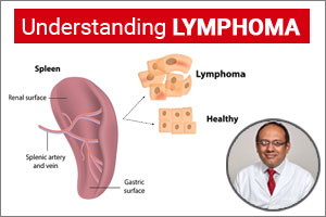 """Lymphoma- A Curable Blood Cancer""- Dr Rahul Bhargava"