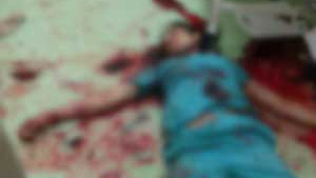 Shocking: Nurse Murdered inside CathLab, Narayana Hospital