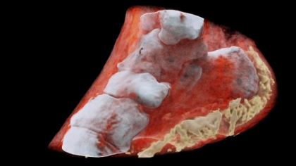 Medical Breakthrough: First-ever 3-D Colour  X-ray performed on a human