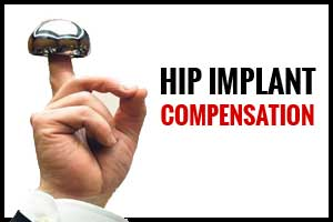 Health Ministry approves compensation formula for Hip implant cases, Details