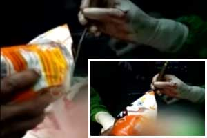 Medical College Director indicted after Video showing him using Table Salt on surgical patients goes viral