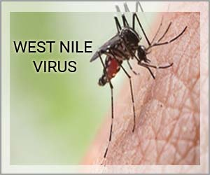 Health Ministry reviews the preparedness on West Nile Fever