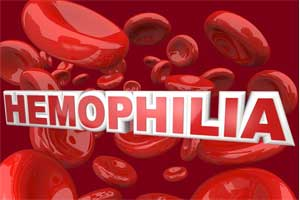 World Hemophilia day: 80 per cent cases undiagnosed in India