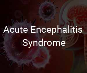 Acute Encephalitis Syndrome: Death toll touches 162 in Bihar, 63 in seven other states