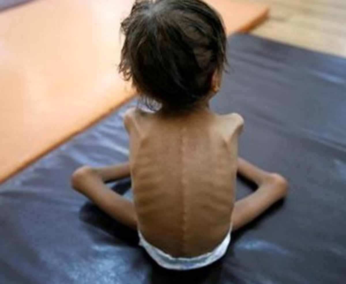 Ghaziabad: Malnourished children to get free treatment in 15 private hospitals