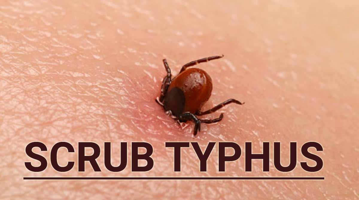 Himachal Pradesh: Death toll of Scrub Typhus mounts to 7