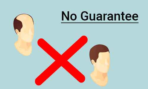 No guarantee with Hair Transplants: Consumer panel dismisses plea against doctor, centre